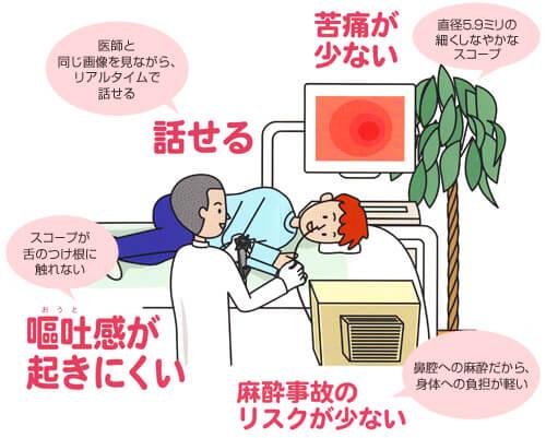 経鼻内視鏡検査の特長